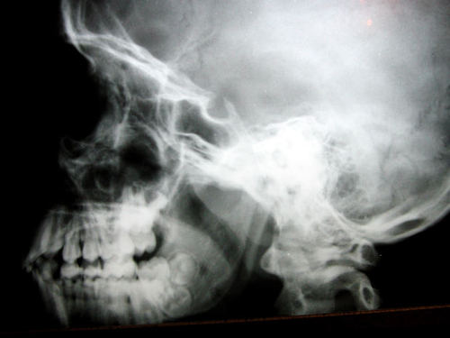 -- doctor doctors skeleton bone bones medicine skull tooth x-rays medical mouth teeth