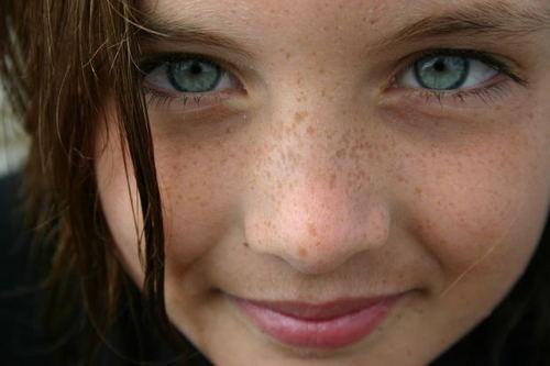 hair freckles youth lips eyes eyelash nose eyelashes mouth face    Nose Freckles